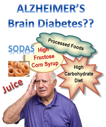 Alzheimer's Disease - Brain Diabetes - Type 3 Diabetes